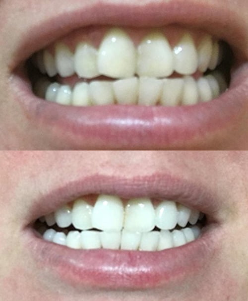 Best Teeth Whitening Kits Reviews For 2017